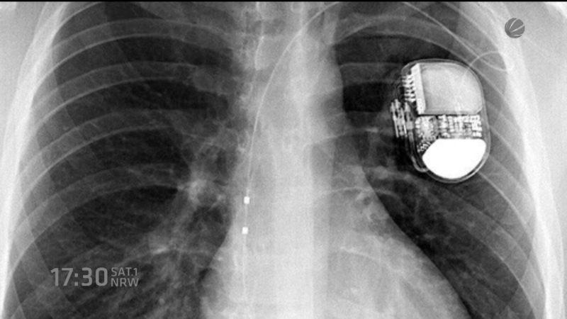 Kicker mit Defibrilator (Foto: SAT.1 NRW)