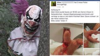 Kind wegen Horrorclown verletzt (Foto: Facebook)