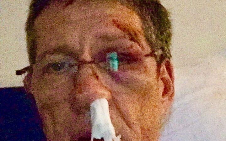 Arzt mit Baseballschläger fast totgeprügelt (Foto: SAT.1 NRW)