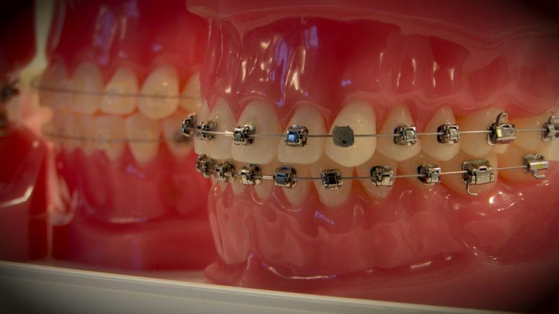 Bringen Zahnspangen etwas? (Foto: SAT.1 NRW)