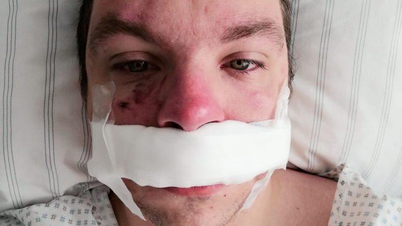 Mann wird von Schäferhund ins Gesicht gebissen (Foto: SAT.1 NRW)