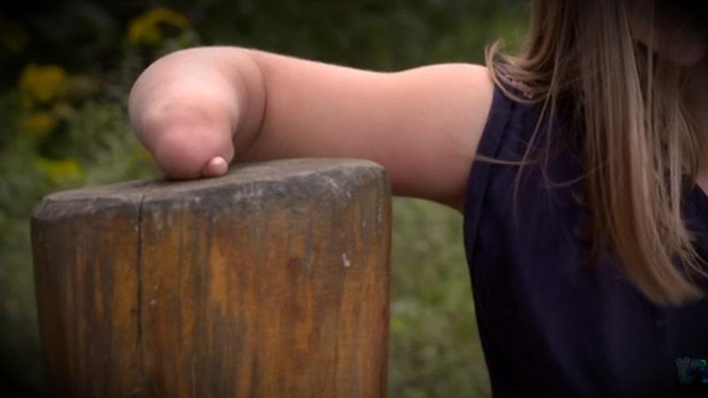 Vermehrte Fehlbildungen bei Neugeborenen (Foto: SAT.1 NRW)