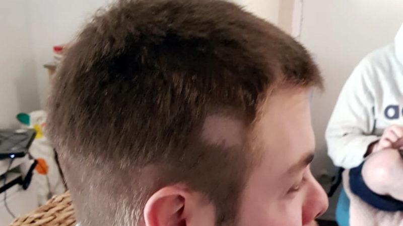 Missglückte Frisur wird berühmt (Foto: SAT.1 NRW)